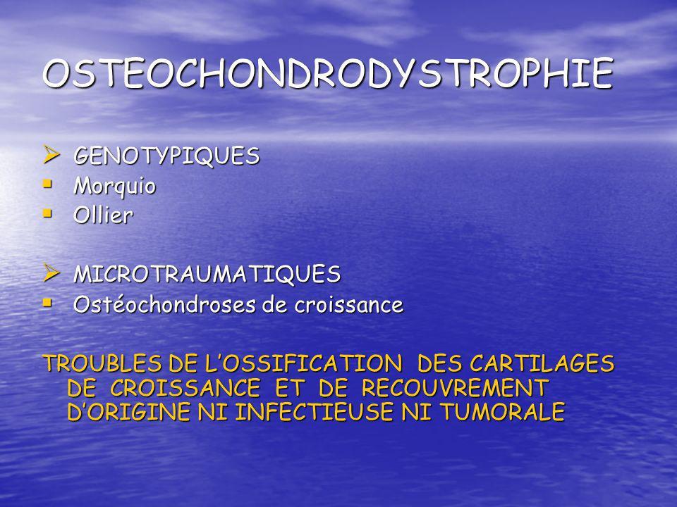 OSTEOCHONDRODYSTROPHIE