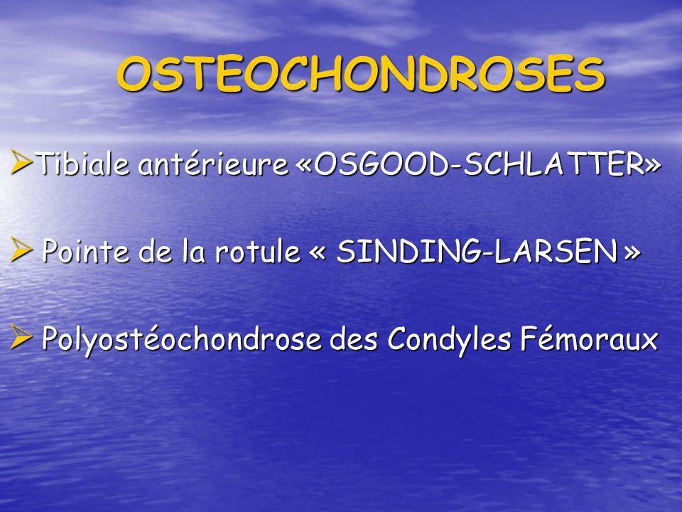 OSTEOCHONDROSES Tibiale antérieure «OSGOOD-SCHLATTER»