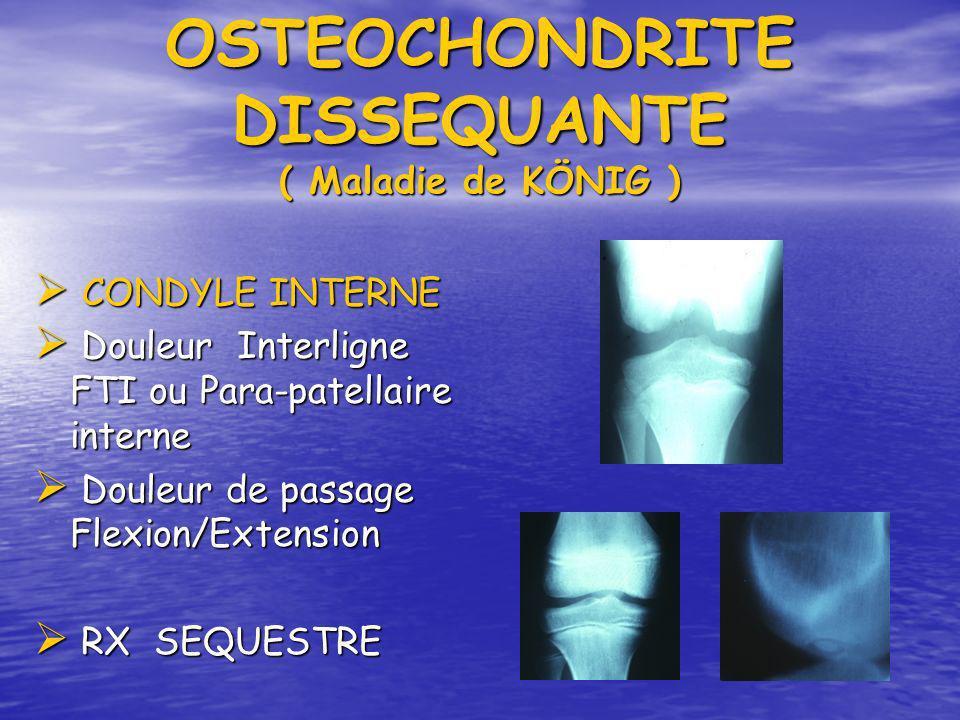 OSTEOCHONDRITE DISSEQUANTE ( Maladie de KÖNIG )