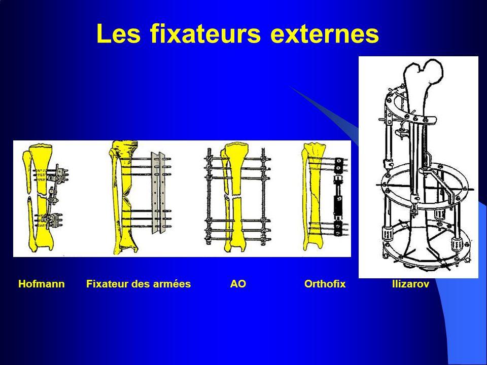 Les fixateurs externes
