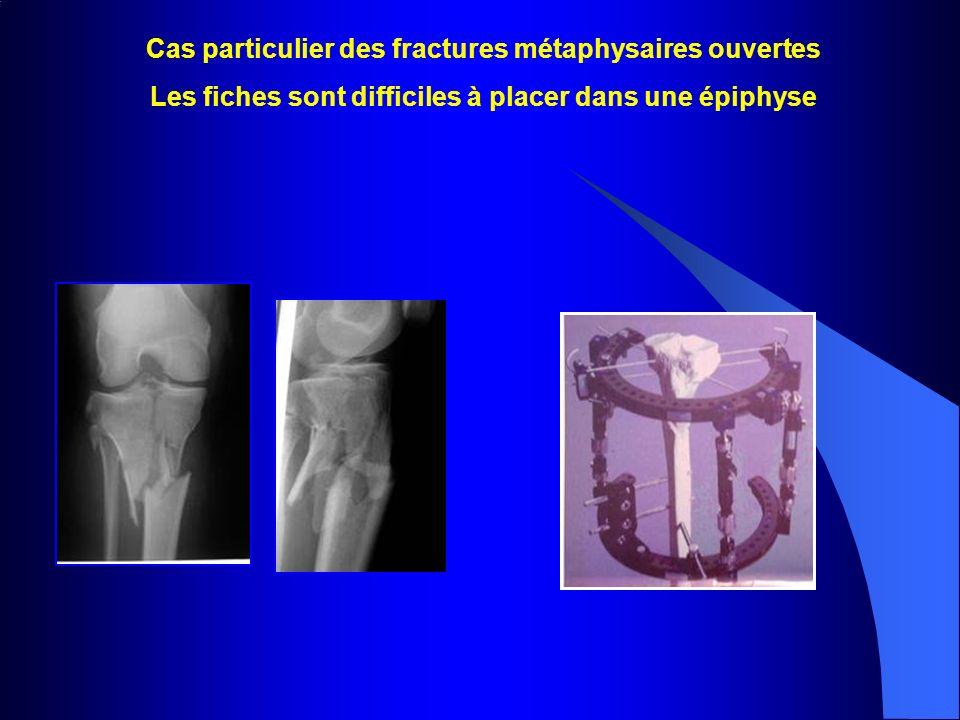 Cas particulier des fractures métaphysaires ouvertes