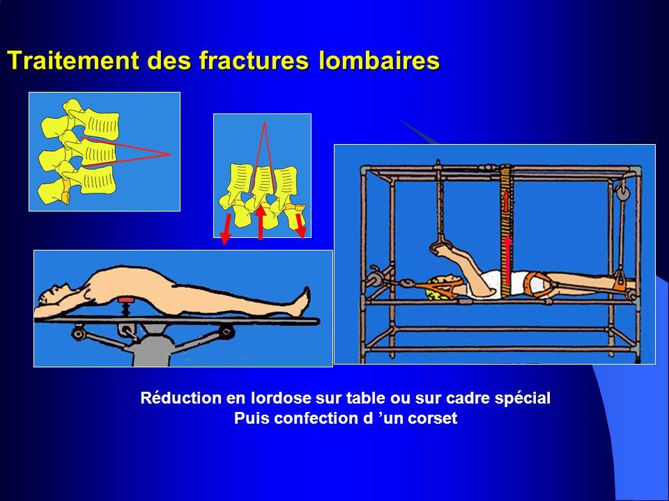Traitement des fractures lombaires