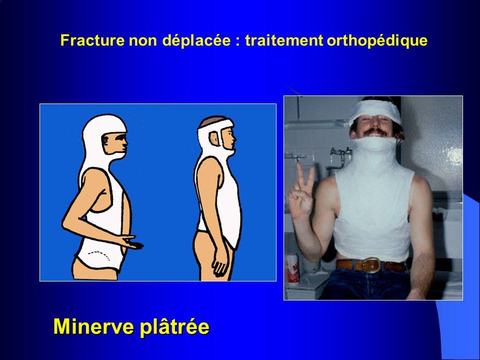 Fracture non déplacée : traitement orthopédique