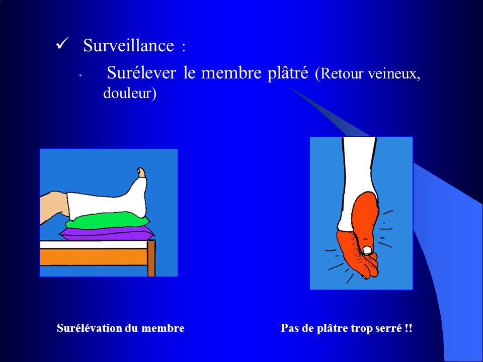 Surveillance : Surélever le membre plâtré (Retour veineux, douleur)