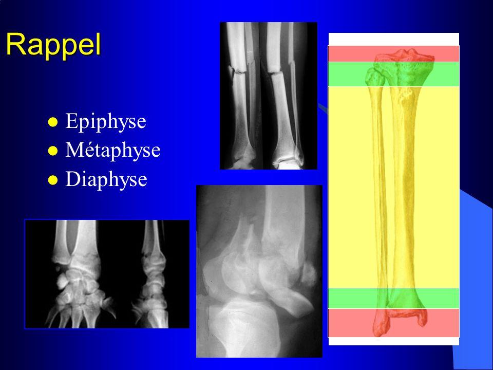 Rappel Epiphyse Métaphyse Diaphyse