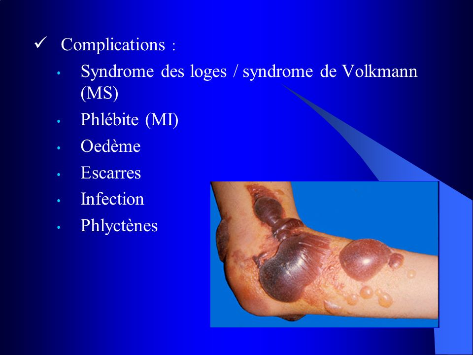 Complications : Syndrome des loges / syndrome de Volkmann (MS) Phlébite (MI) Oedème. Escarres. Infection.
