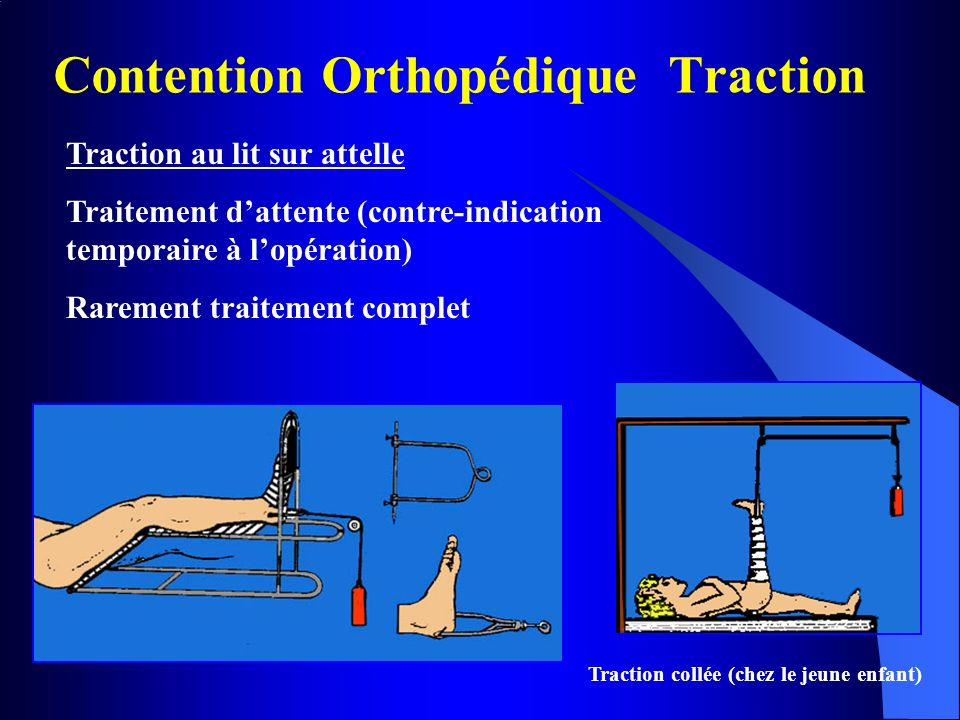 Contention Orthopédique Traction