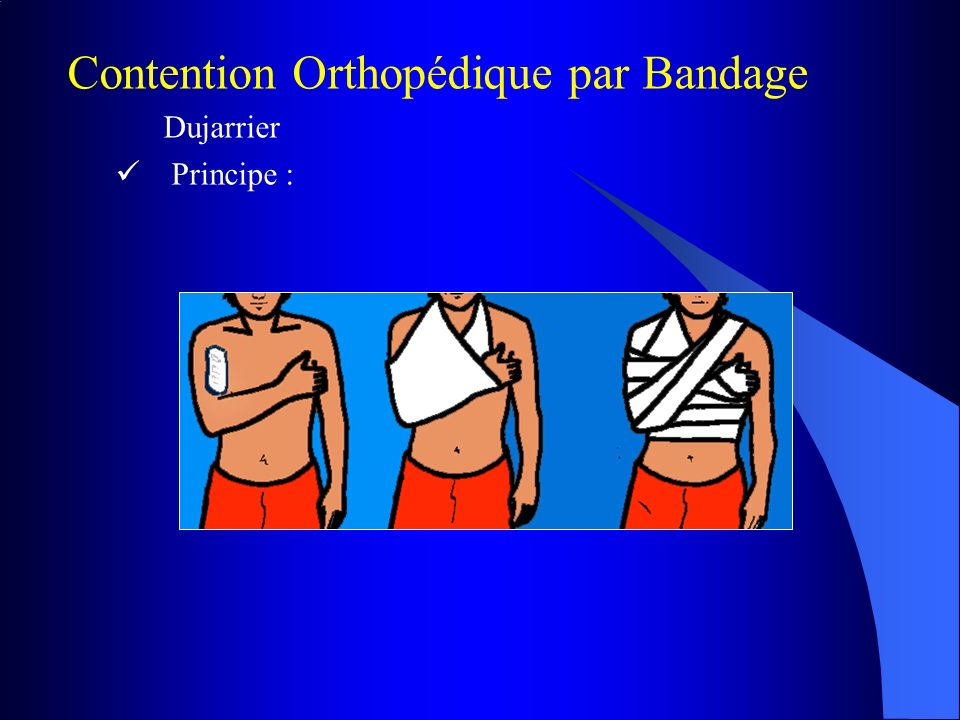 Contention Orthopédique par Bandage