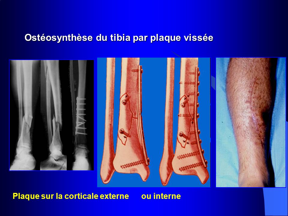 Ostéosynthèse du tibia par plaque vissée