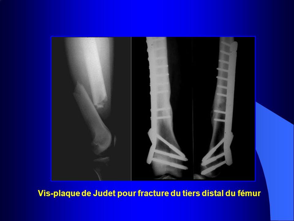 Vis-plaque de Judet pour fracture du tiers distal du fémur