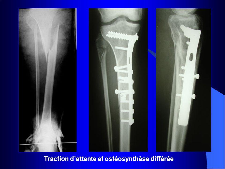 Traction d'attente et ostéosynthèse différée