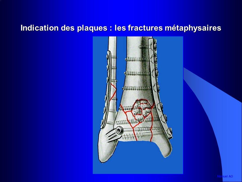Indication des plaques : les fractures métaphysaires