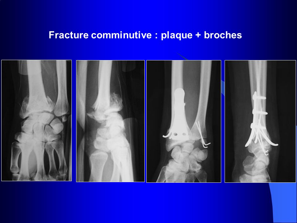 Fracture comminutive : plaque + broches