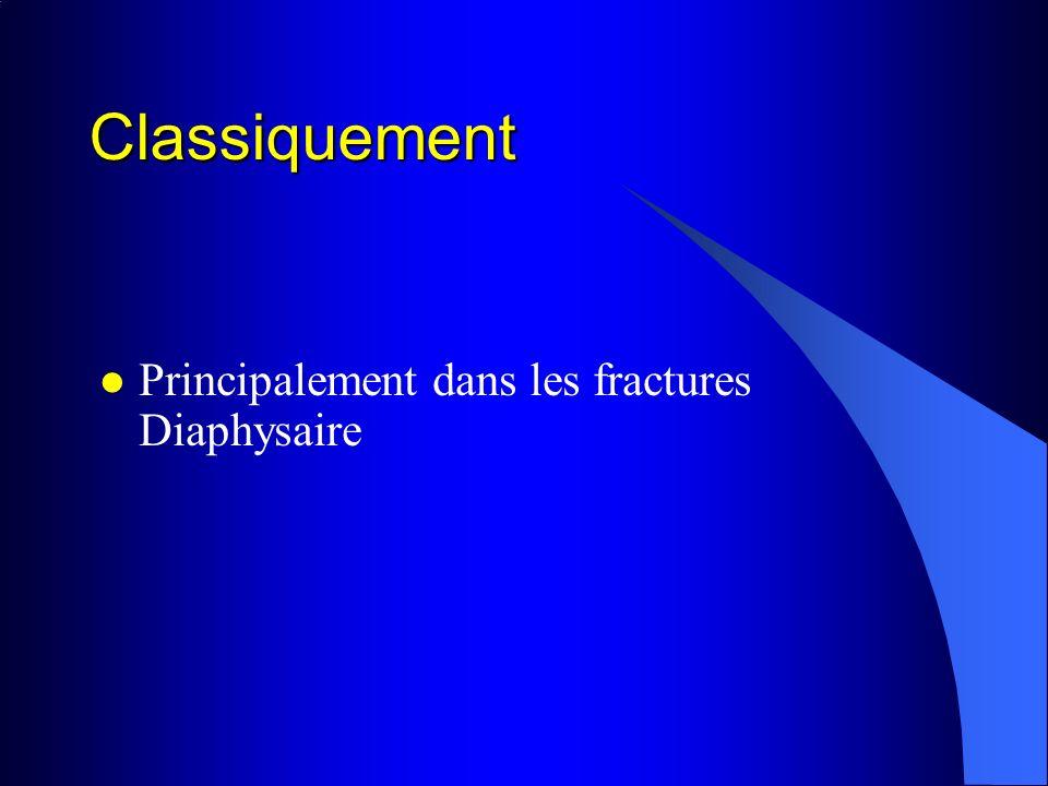 Classiquement Principalement dans les fractures Diaphysaire