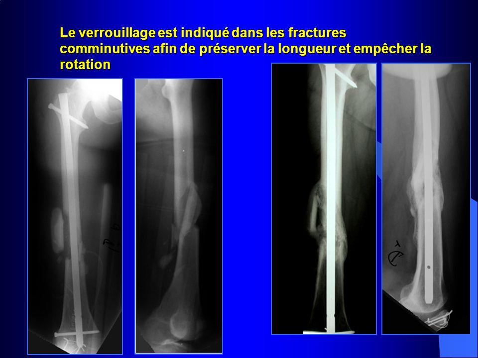 Le verrouillage est indiqué dans les fractures comminutives afin de préserver la longueur et empêcher la rotation