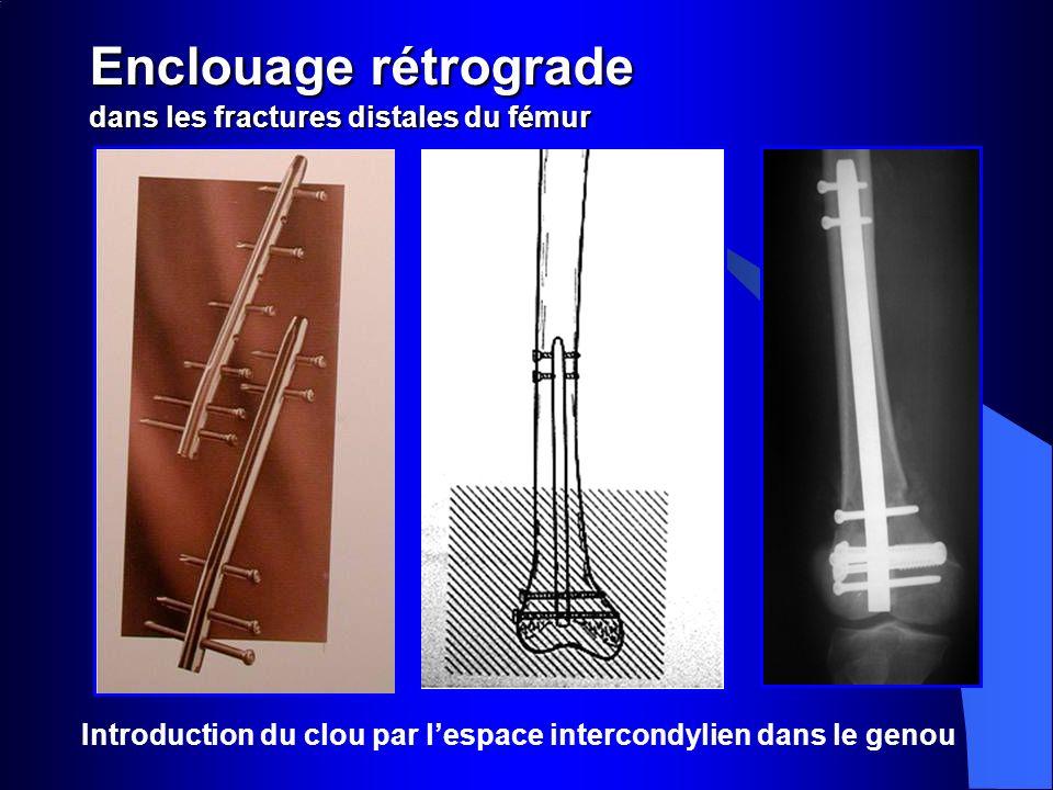 Enclouage rétrograde dans les fractures distales du fémur