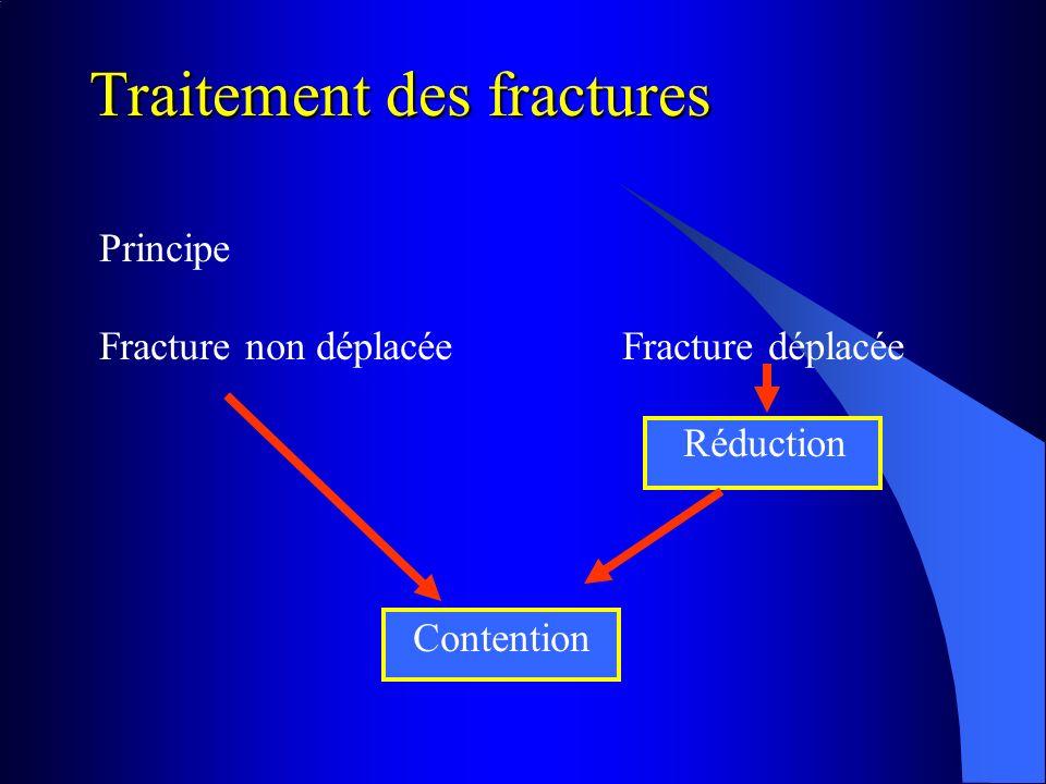 Traitement des fractures