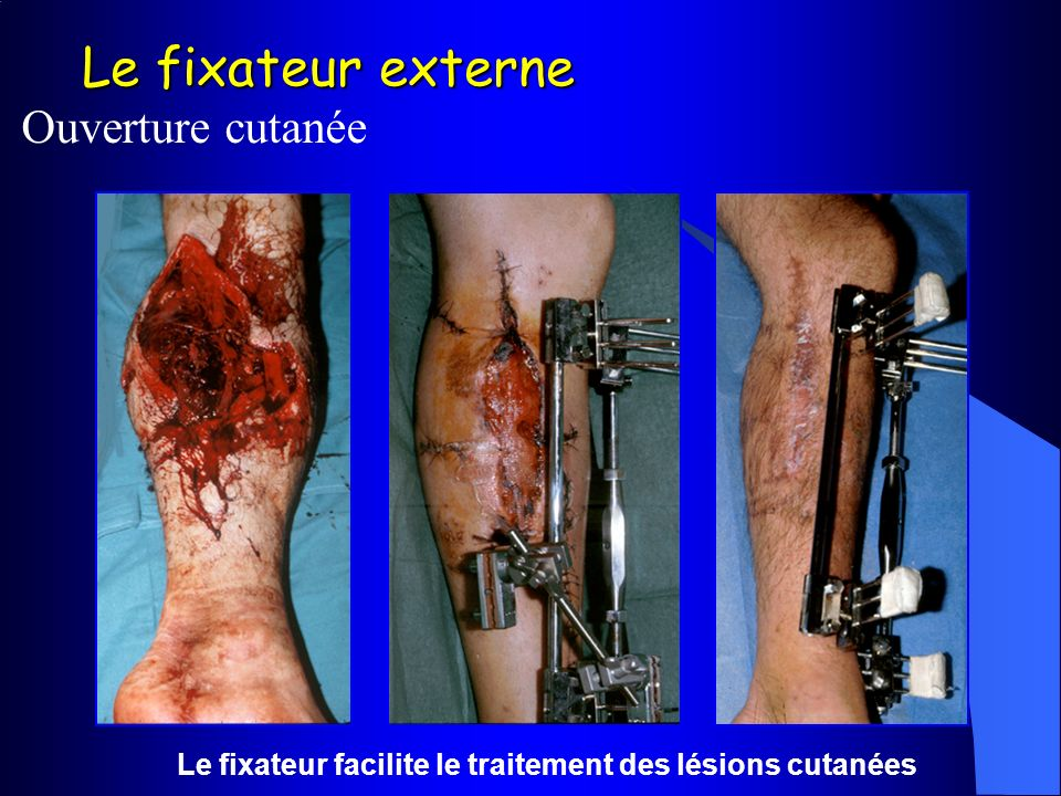 Le fixateur facilite le traitement des lésions cutanées