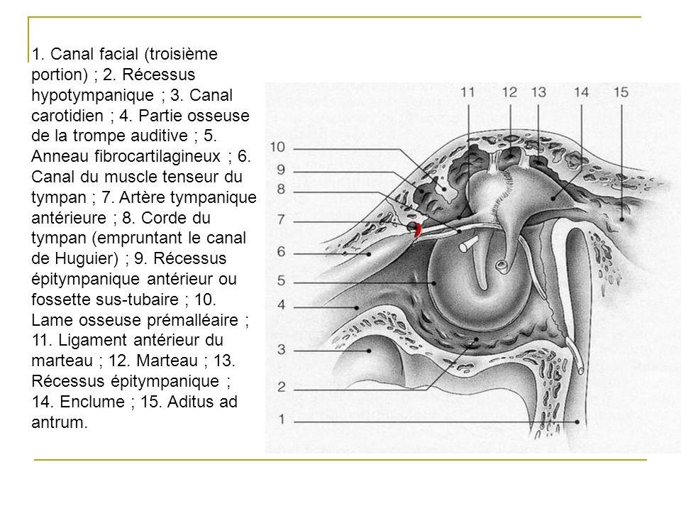 1. Canal facial (troisième portion) ; 2. Récessus hypotympanique ; 3