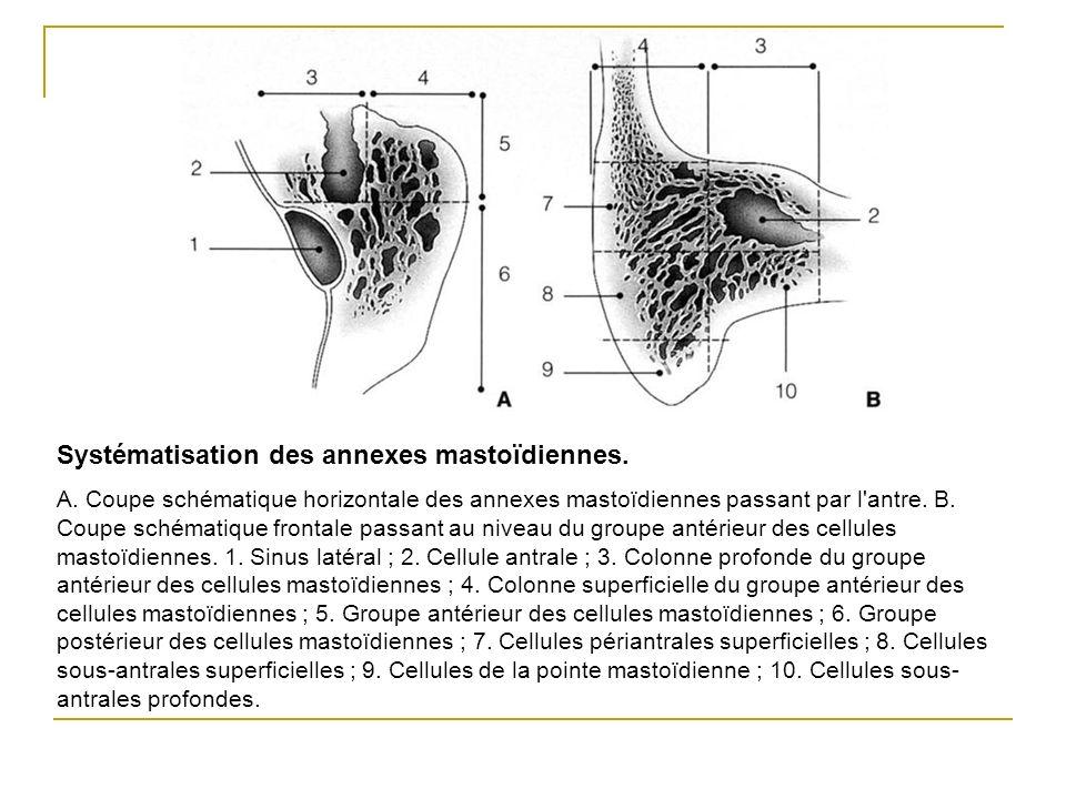 Systématisation des annexes mastoïdiennes.