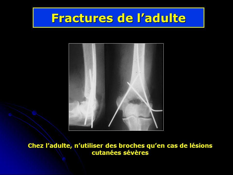 Fractures de l'adulte Chez l'adulte, n'utiliser des broches qu'en cas de lésions cutanées sévères