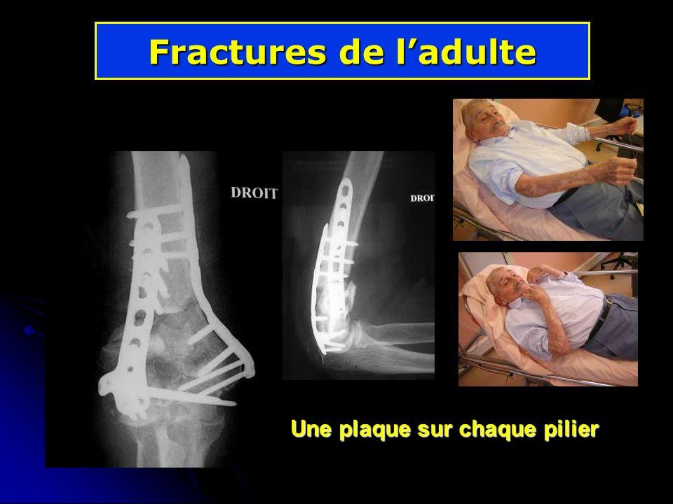 Fractures de l'adulte Une plaque sur chaque pilier
