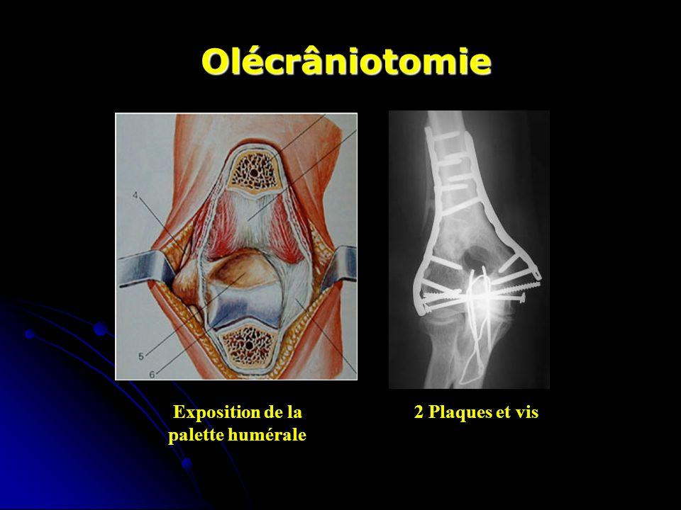 Olécrâniotomie Exposition de la 2 Plaques et vis palette humérale