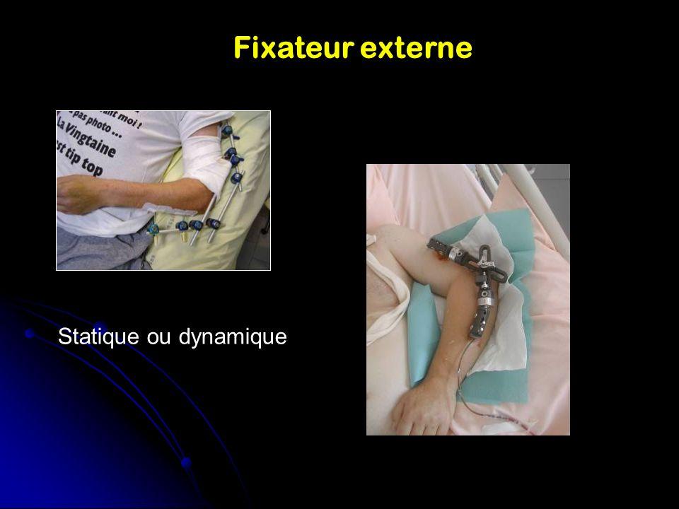 Fixateur externe Statique ou dynamique