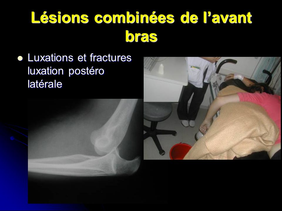 Lésions combinées de l'avant bras