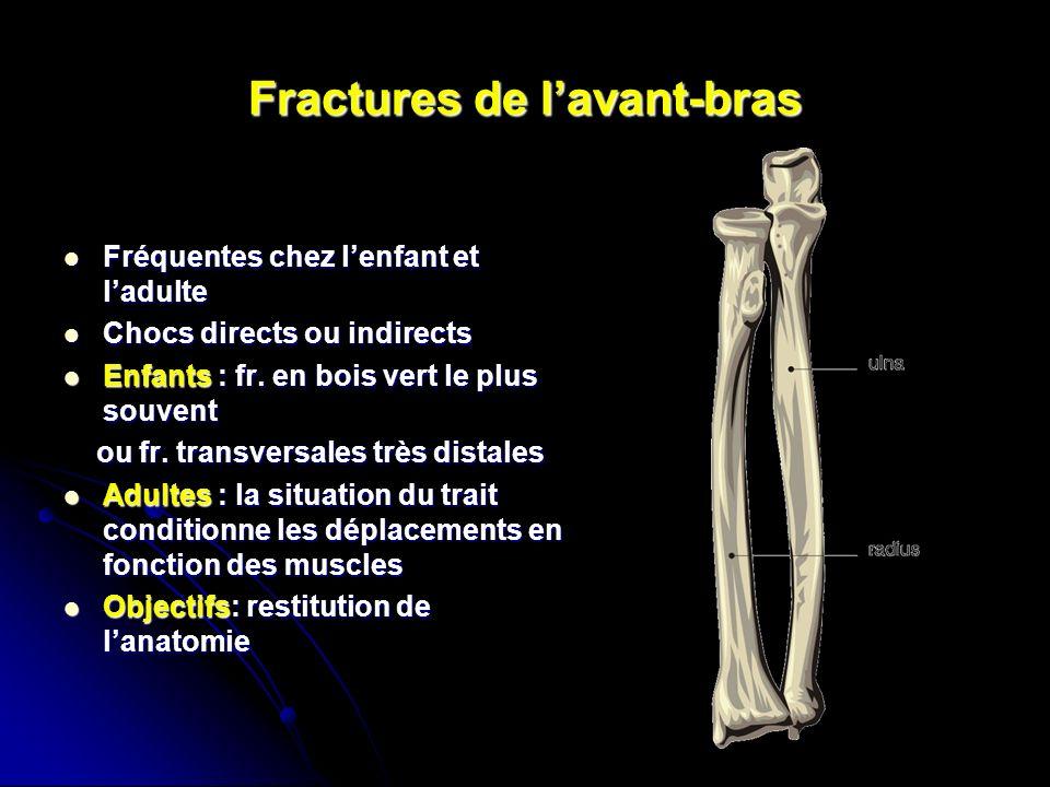 NBrassart, MWinter Service d'Orthopédie Traumatologie  ~ Fracture Bois Vert Poignet