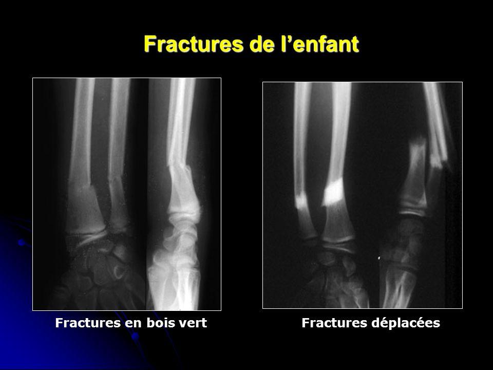 Fractures de l'enfant Fractures en bois vert Fractures déplacées