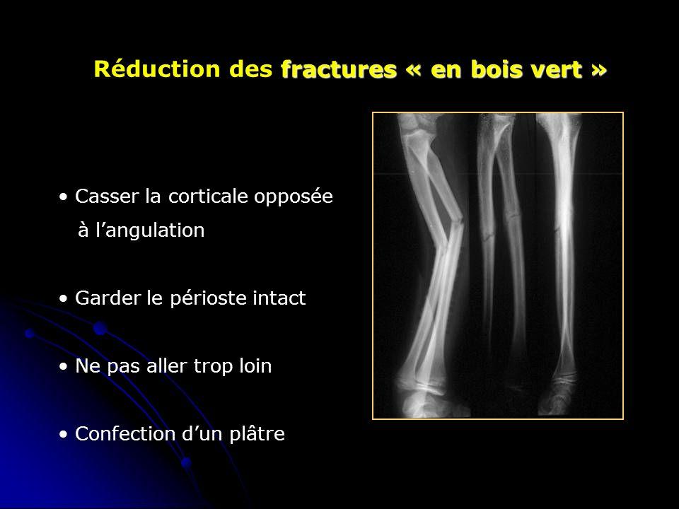 Réduction des fractures « en bois vert »