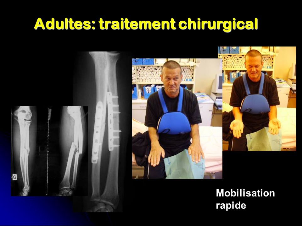 Adultes: traitement chirurgical