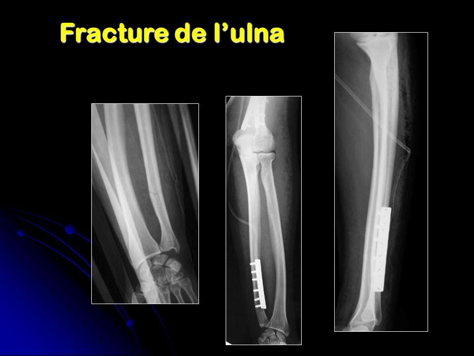 Fracture de l'ulna