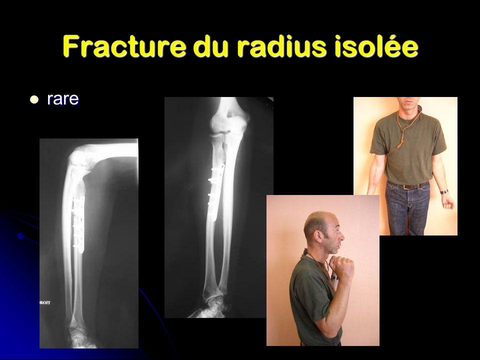 Fracture du radius isolée