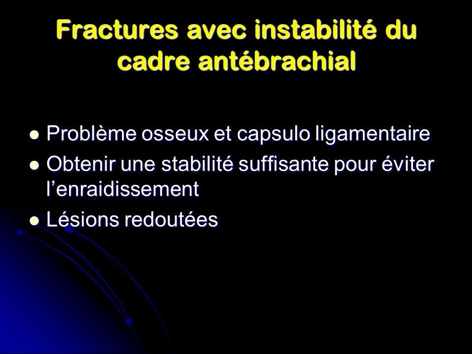 Fractures avec instabilité du cadre antébrachial
