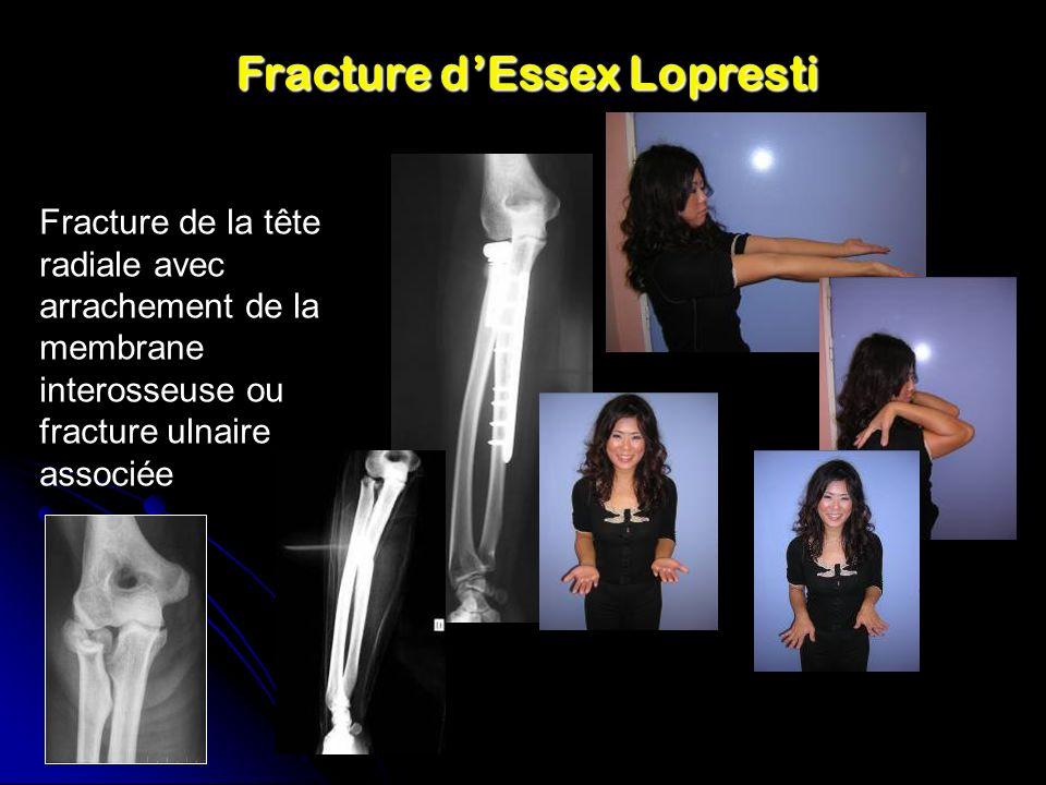 Fracture d'Essex Lopresti