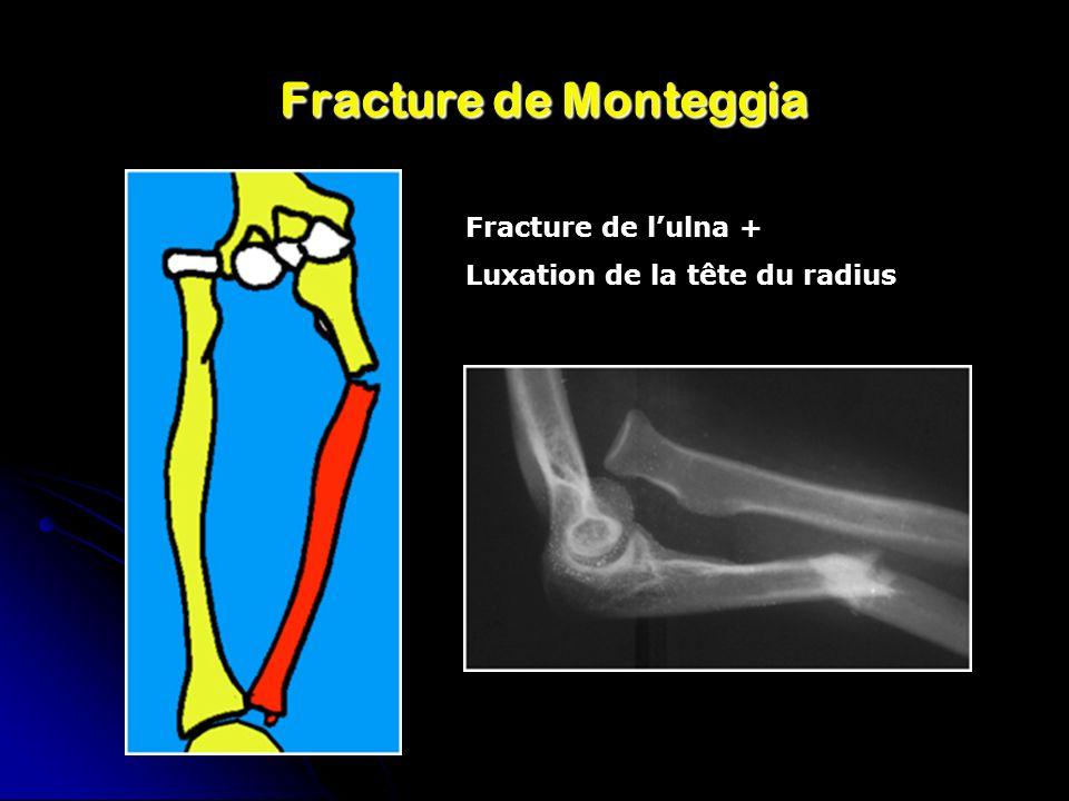 Fracture de Monteggia Fracture de l'ulna +