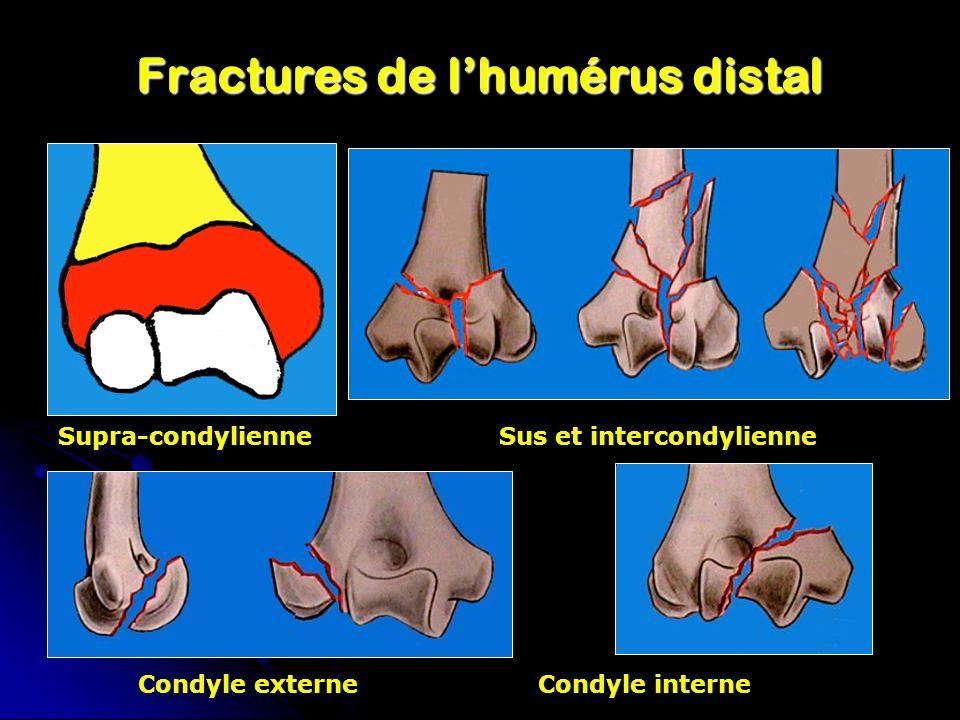 Fractures de l'humérus distal