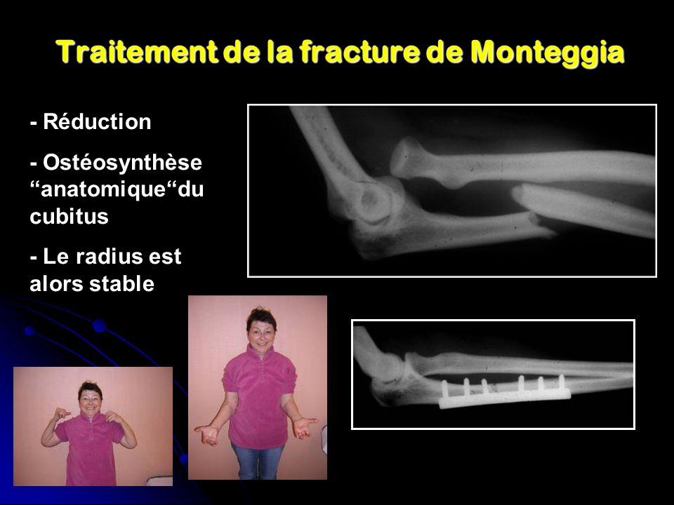 Traitement de la fracture de Monteggia