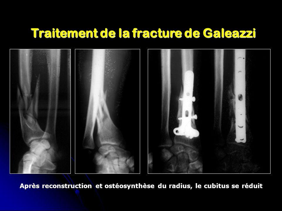 Traitement de la fracture de Galeazzi