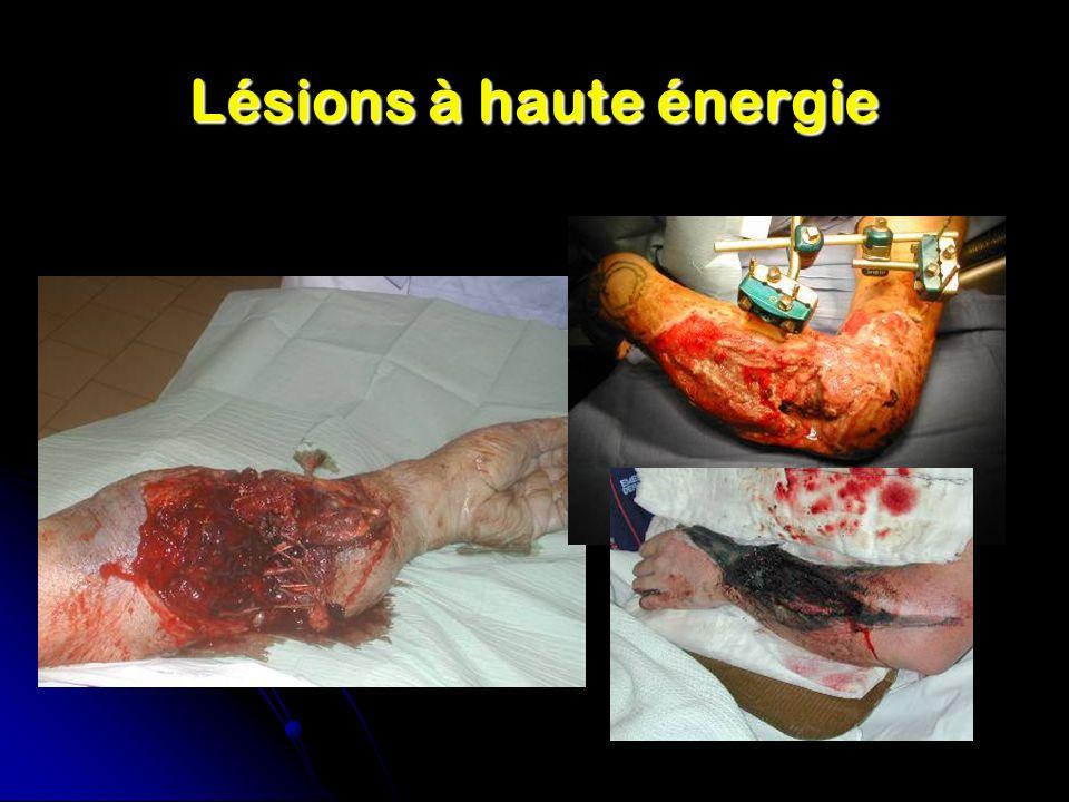 Lésions à haute énergie