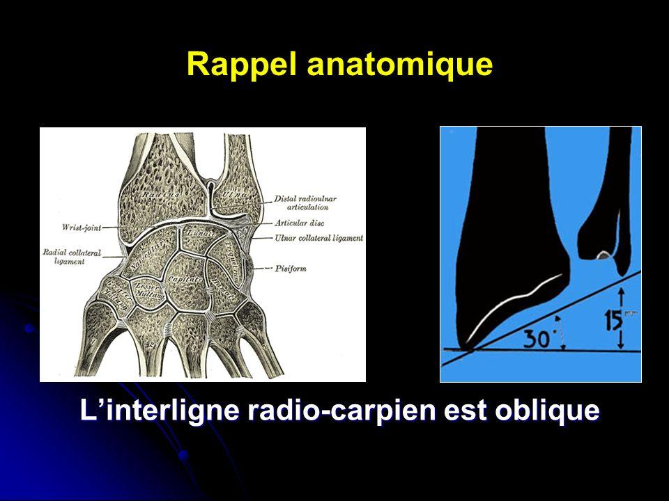 L'interligne radio-carpien est oblique