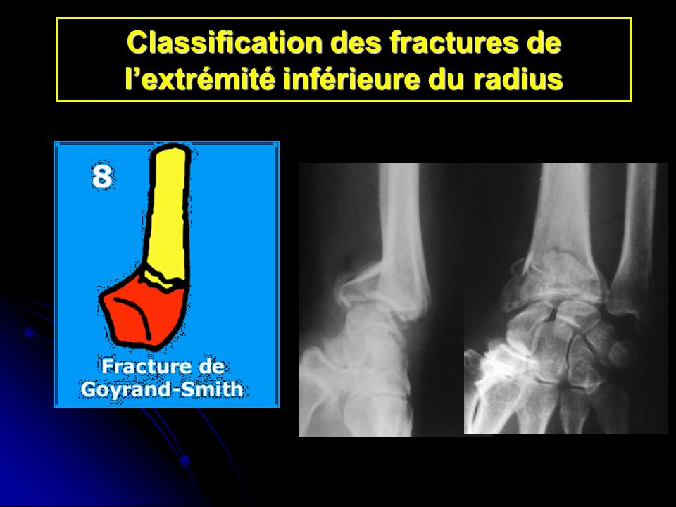 Classification des fractures de l'extrémité inférieure du radius