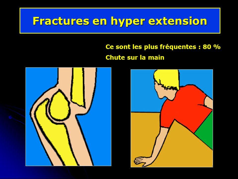 Fractures en hyper extension