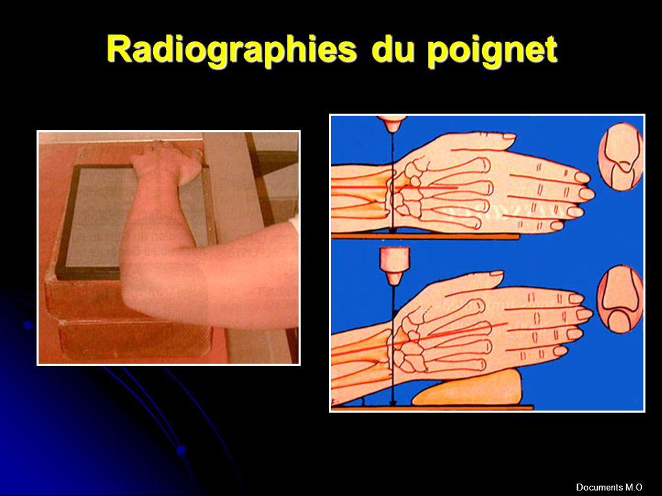 Radiographies du poignet