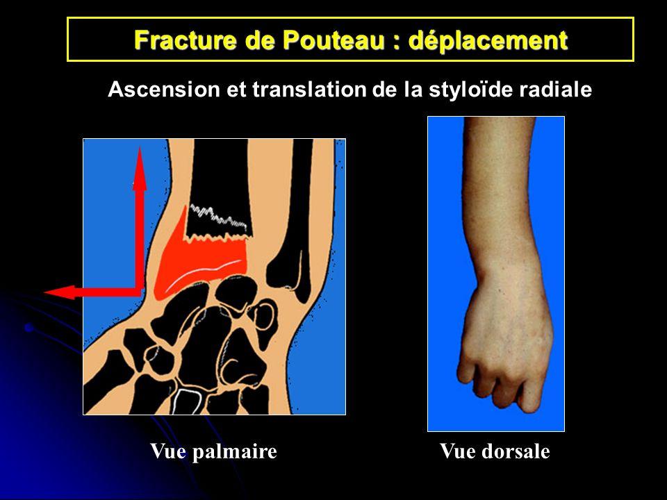 Fracture de Pouteau : déplacement