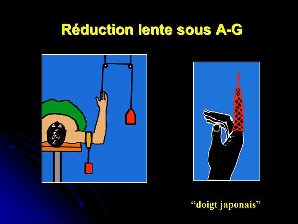 Réduction lente sous A-G