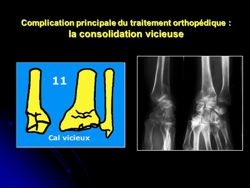 Complication principale du traitement orthopédique : la consolidation vicieuse