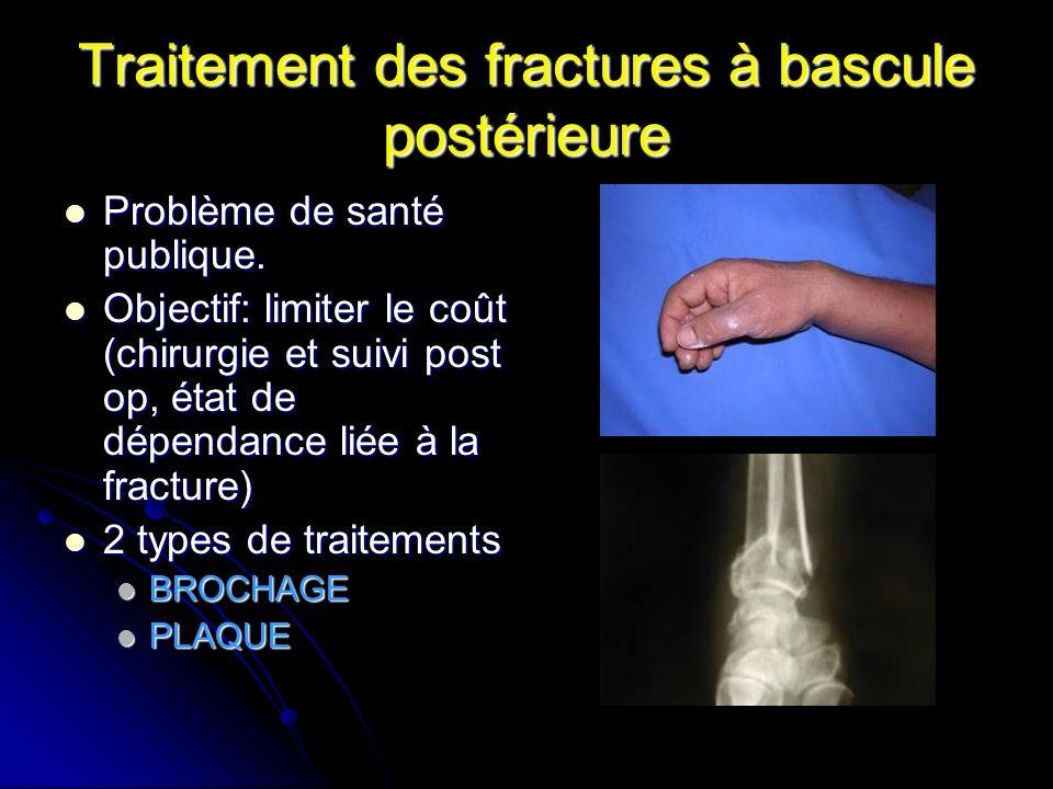 Traitement des fractures à bascule postérieure